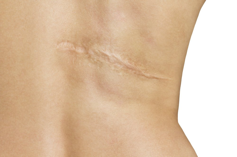 treat old scars - work on limitations