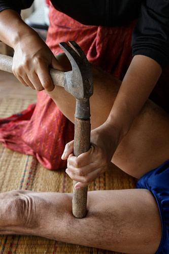 Traditionelle Behandlung, junge Frau behandelt Oberschenkel mit mit Holz und Hammer