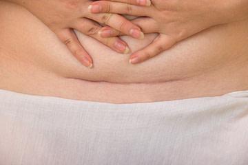 Kaiserschnitt Narbe Beschwerden