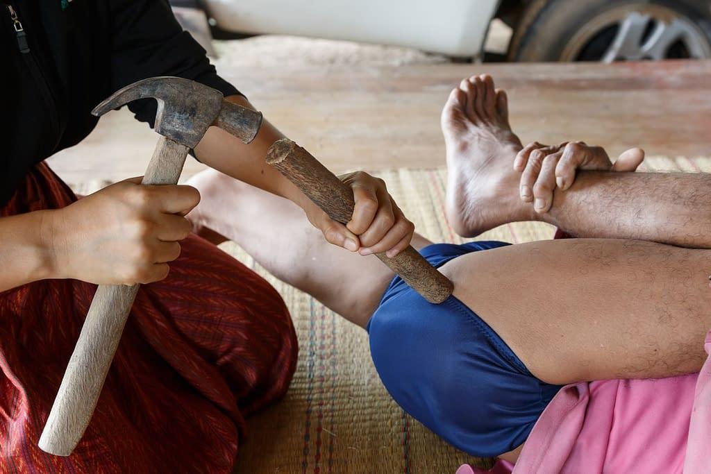 Faszientherapie 1.0 - Hammertherapie rund um den Sitzbeinhöcker